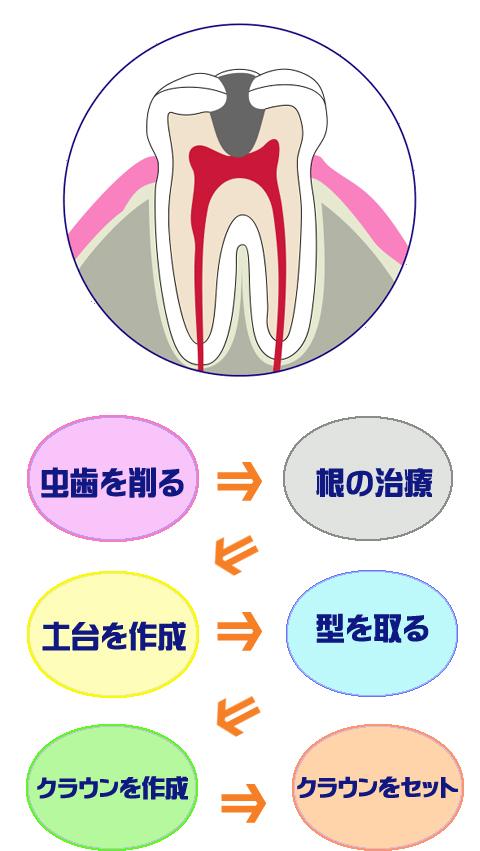 虫歯を削る⇒根の治療⇒土台を作成⇒型を取る⇒クラウンを作成⇒クラウンをセット
