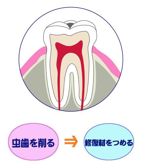 虫歯を削る⇒修復剤をつめる