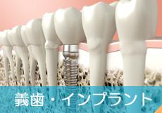 義歯・インプラント